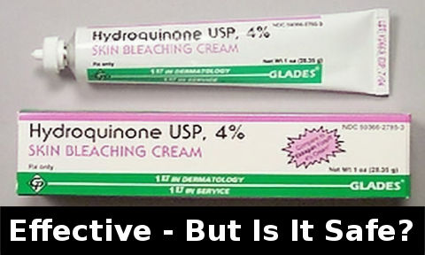 Hydroquinone - how long to work & is it safe